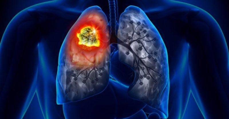 Respiratory Cancers