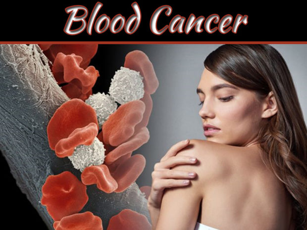 What Are The Blood Cancer Symptoms?