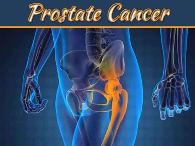 What Is Prostate Cancer – 9 Signs And Symptoms