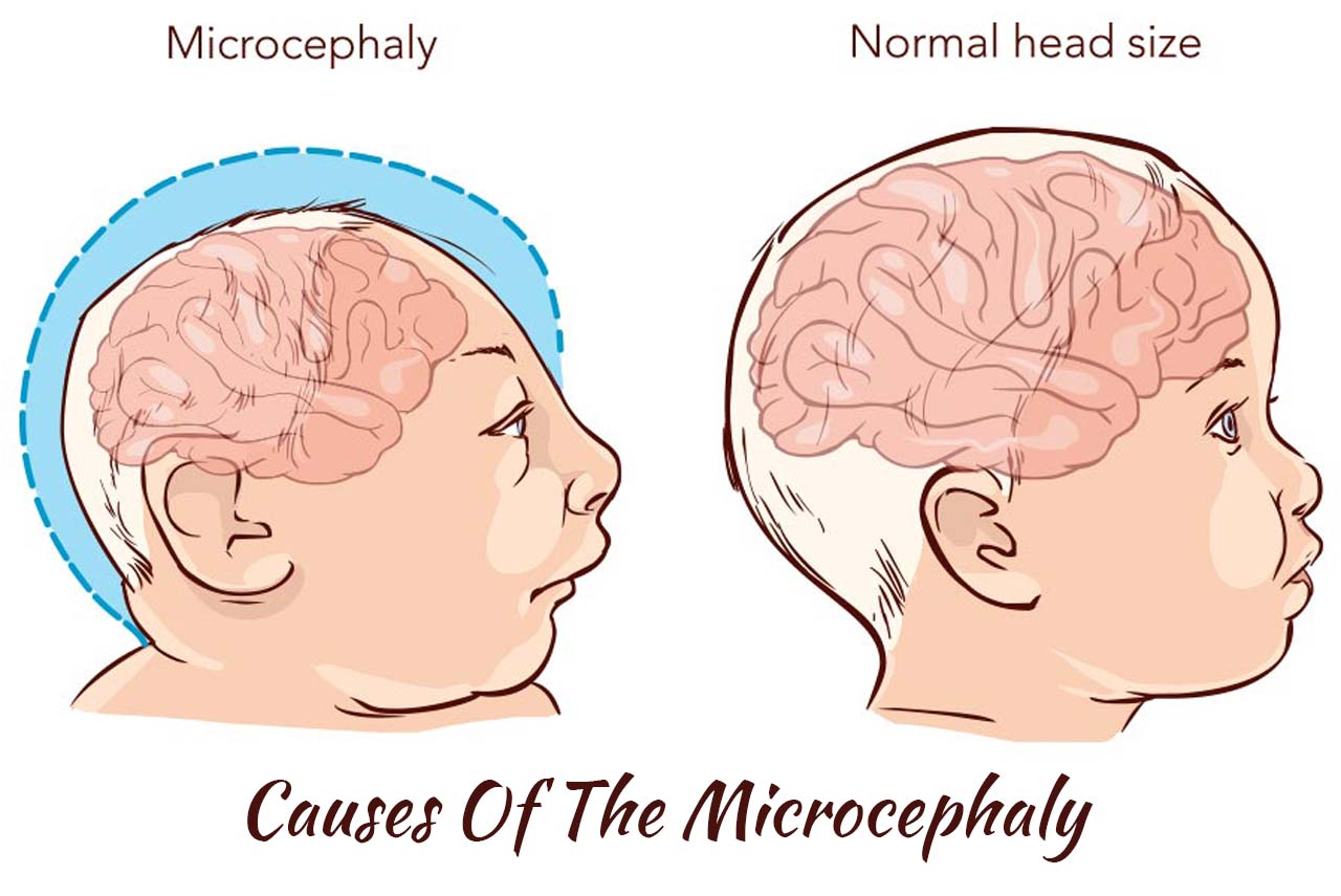 Causes Of The Microcephaly