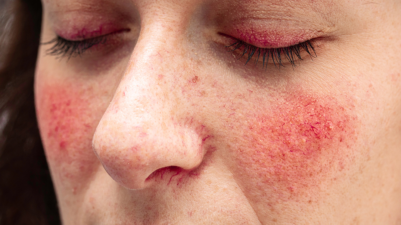 Skin Conditions Like Rosacea