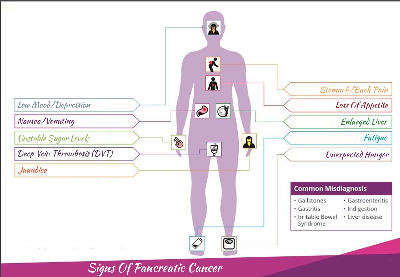 Signs Of Pancreatic Cancer