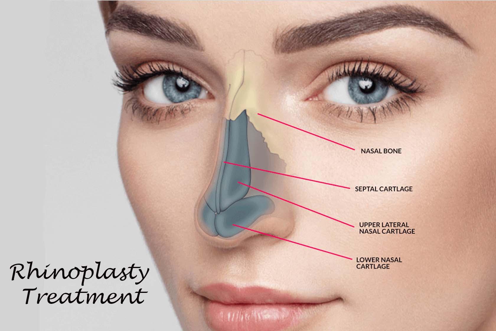 Rhinoplasty Treatment