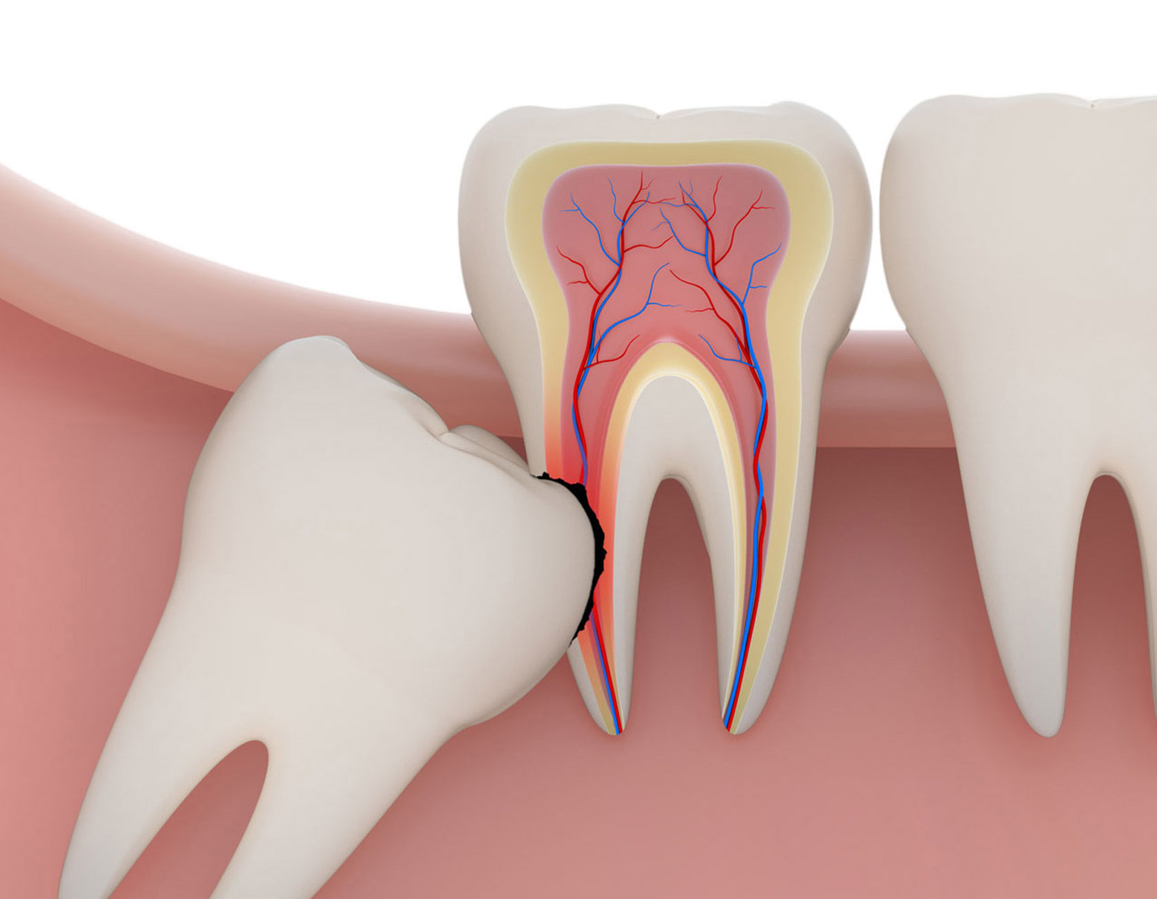 Role Of Wisdom Tooth