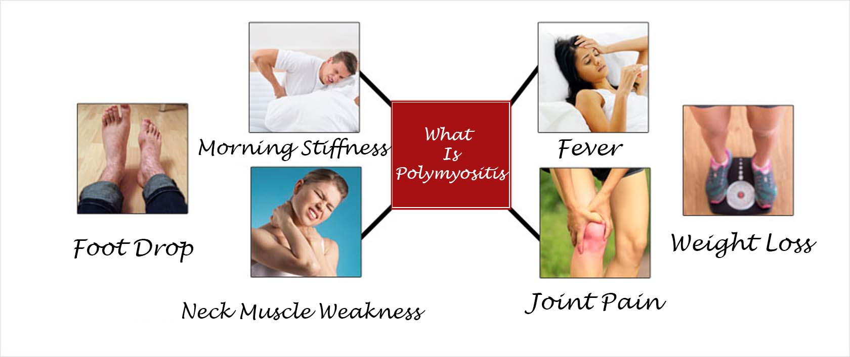 5 Things To Know About Polymyositis