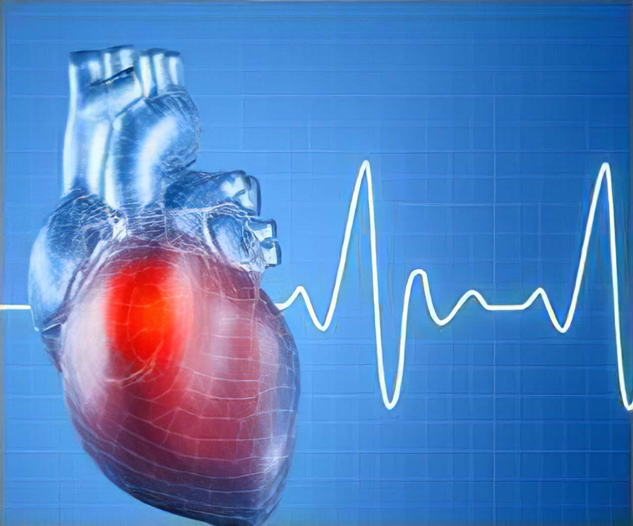 Heart Rhythm Problem