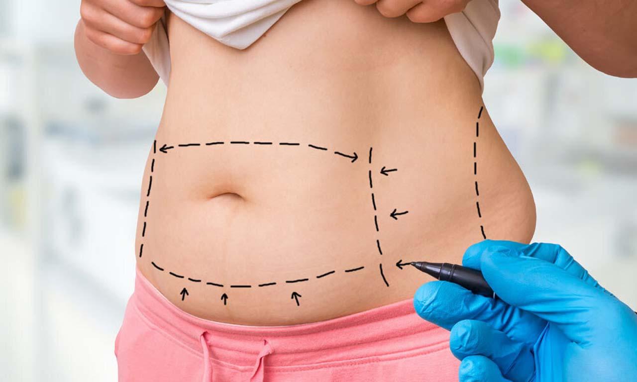 Benefits Of Tummy Tuck