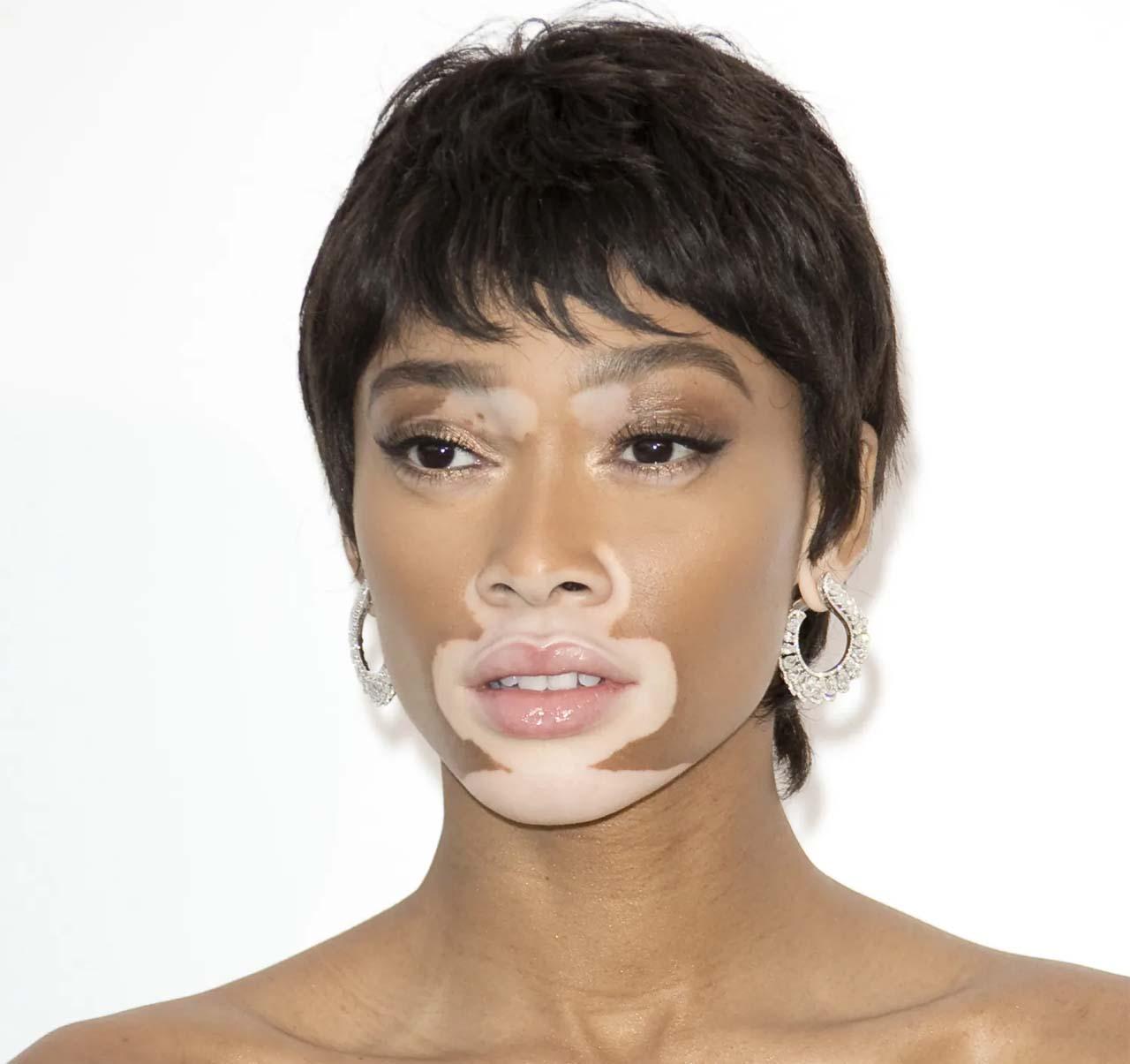 Causes Of Vitiligo