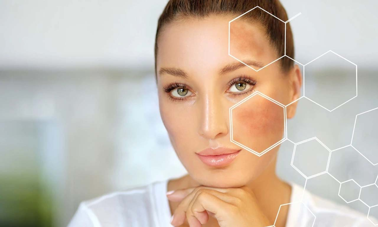 Inflammatory Hyperpigmentation And Acne