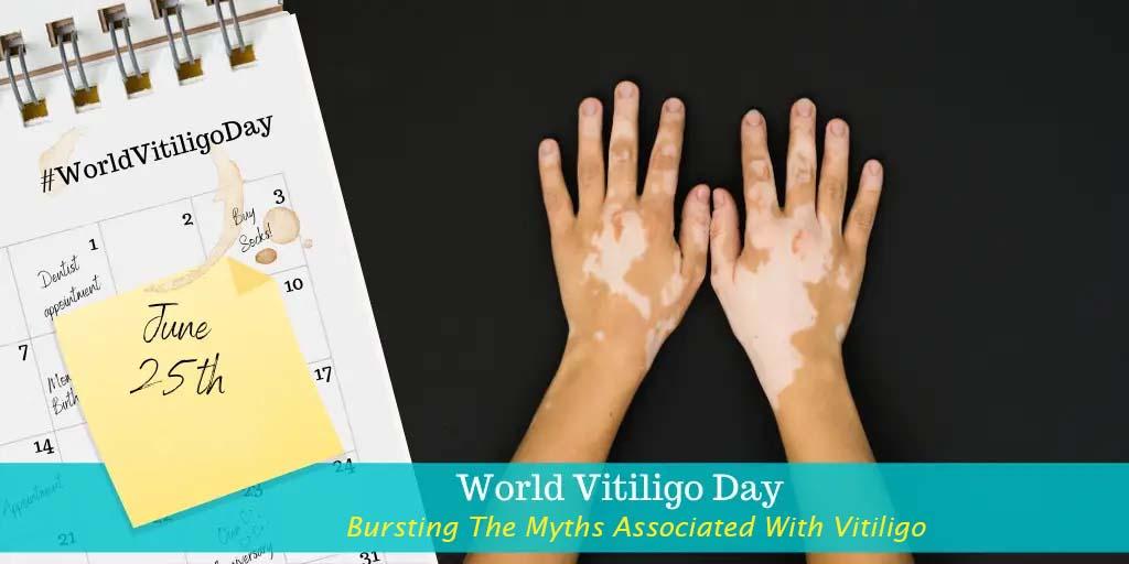 Myths About Vitiligo